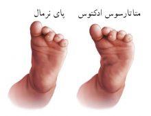 اختلال در راستای اندام تحتانی